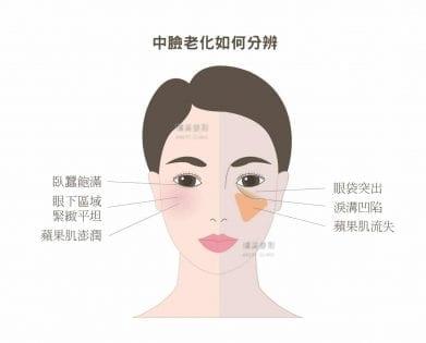 中臉老化如何分辨,了解眼袋突出-蘋果肌流失-淚溝凹陷