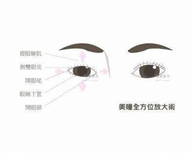 提眼瞼肌荊偉政醫師璞美醫美提眼瞼肌恢復期提眼瞼肌手術提眼瞼肌消腫眼瞼肌多久後恢復自然提眼瞼肌價錢提眼瞼肌失敗提眼瞼肌風險提眼瞼肌疤痕提眼瞼肌後遺症提眼瞼肌ptt推薦提眼瞼肌台北推薦大小眼提眼肌ptt推薦提眼瞼肌dcard推薦眼睛無神提眼肌術後