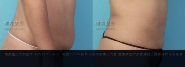 腹部抽脂局案對照圖11