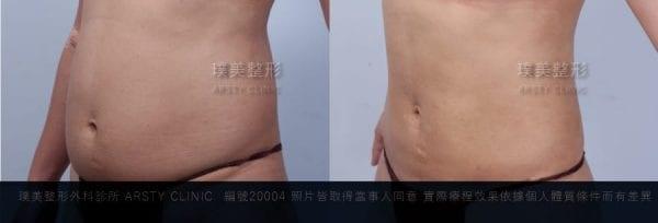 腹部抽脂局案對照圖6