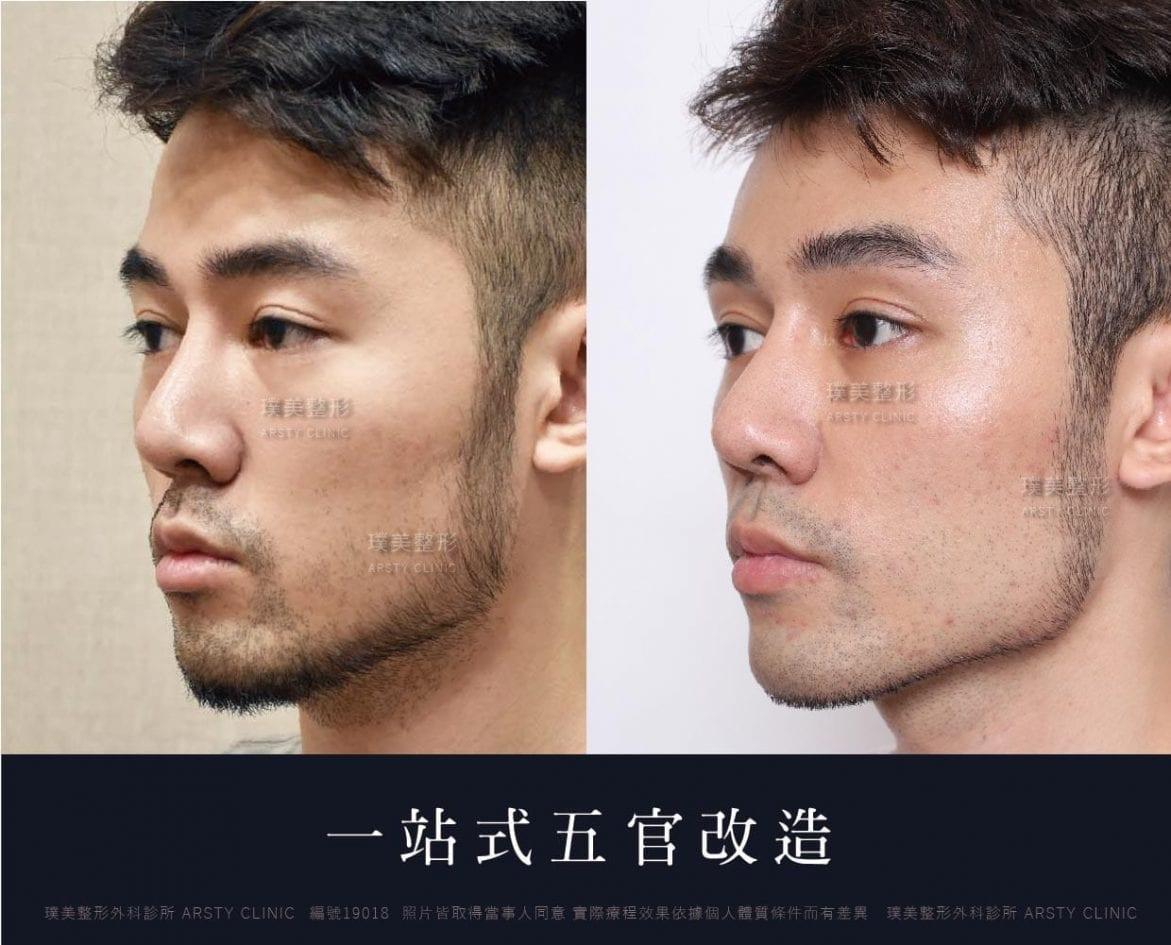 G 豐額 鼻溝槽 縮鼻翼 墊眉骨 15