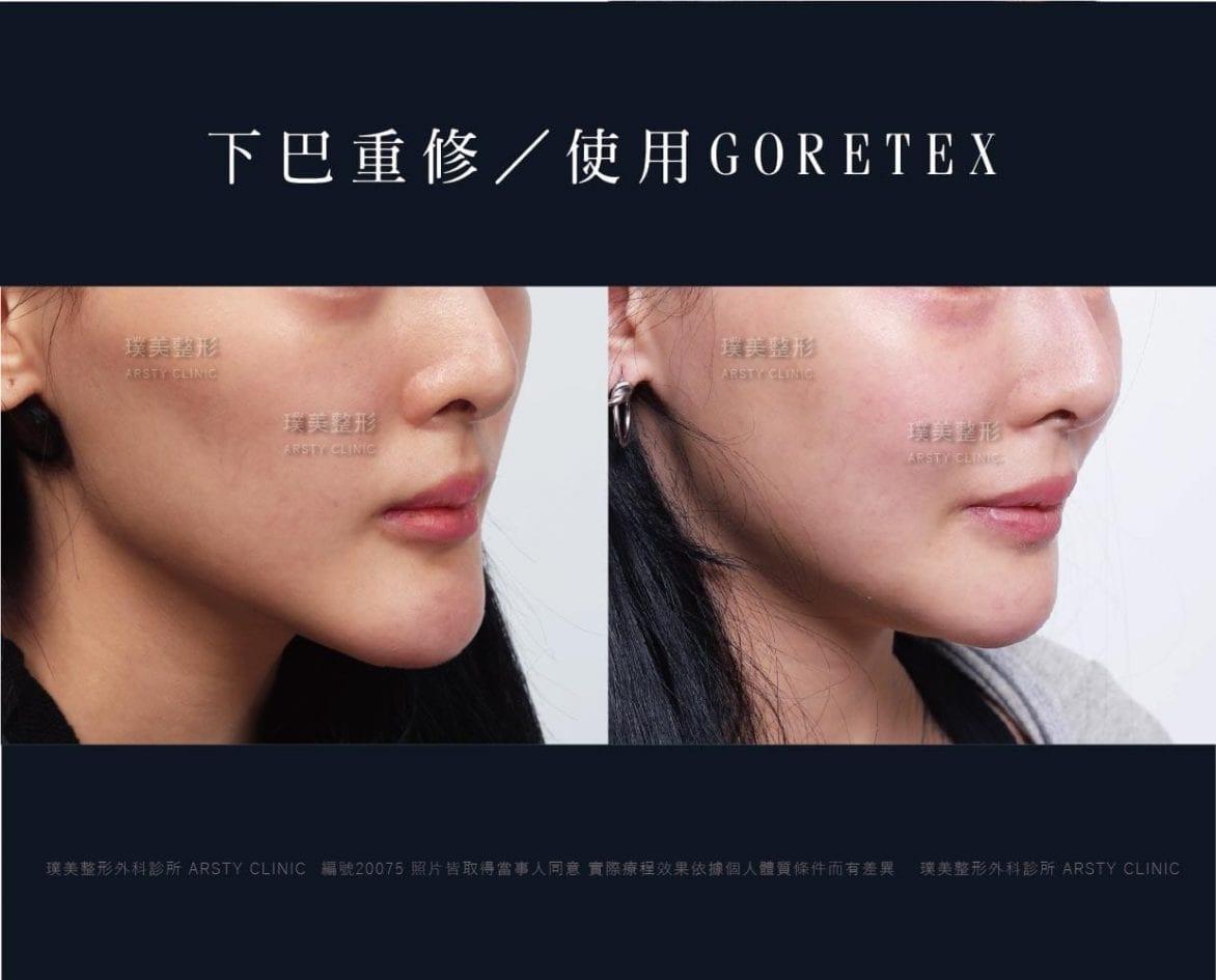 下巴重修 goretex 07