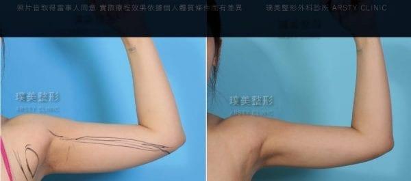 手臂局案對照圖2