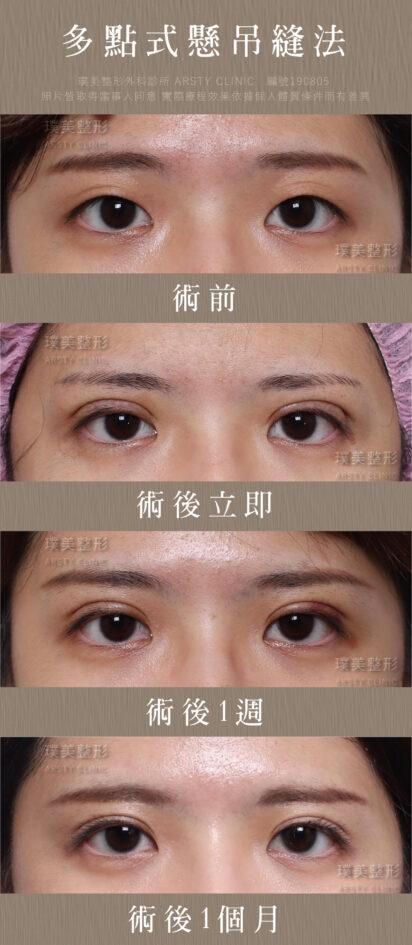 璞美縫雙眼皮案例