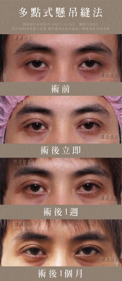 縫雙眼皮案例