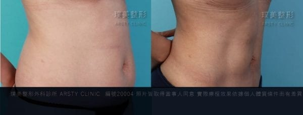 腹部抽脂局案對照圖9