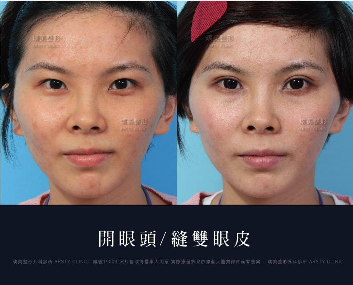 割雙眼皮案例對照圖 13