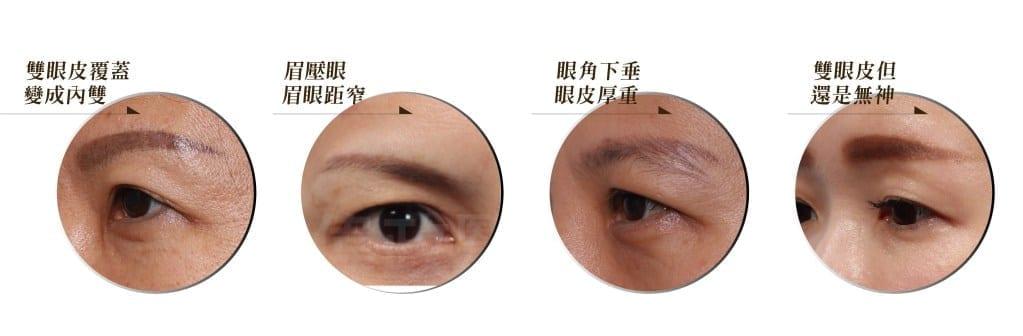 內視鏡微創提眉推薦荊偉政醫師提眉手術可改善的眼周鬆弛