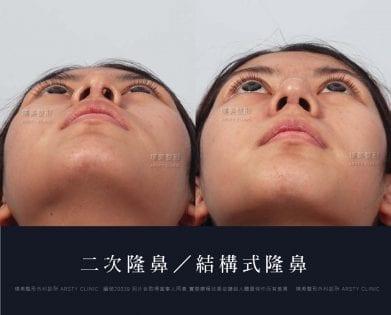 鼻案例對照圖 29