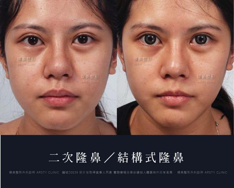 鼻案例對照圖 30