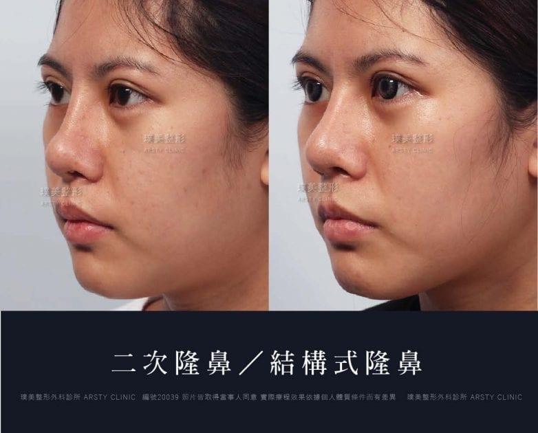 鼻案例對照圖 31