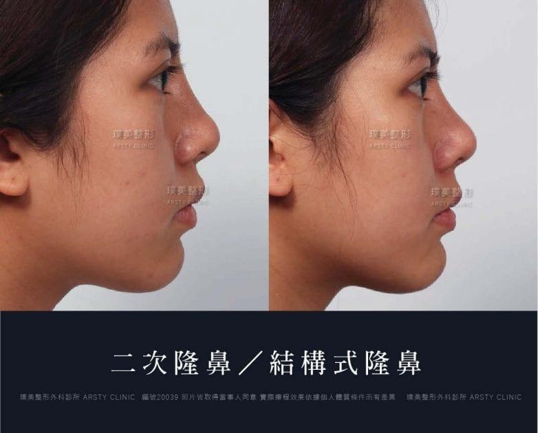 鼻案例對照圖 32