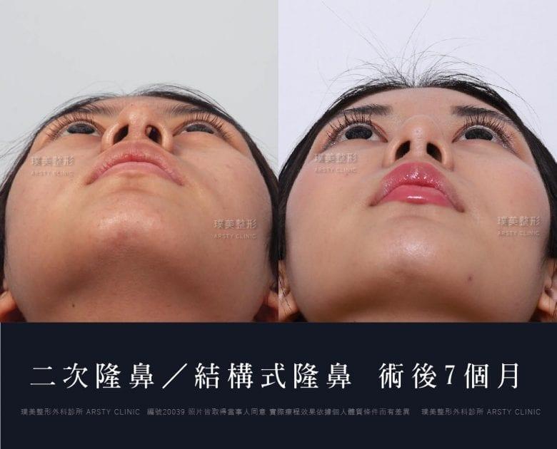 鼻案例對照圖 38