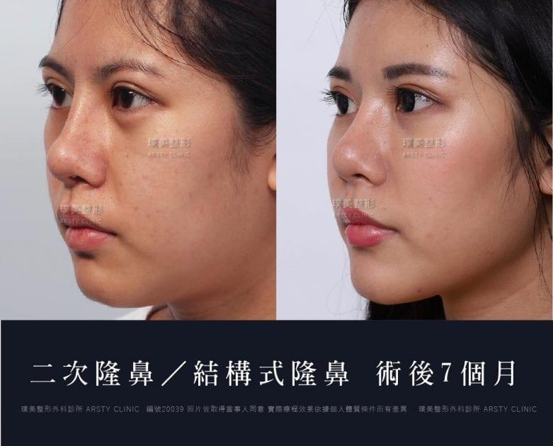 鼻案例對照圖 40