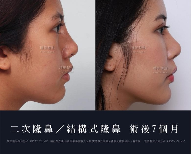 鼻案例對照圖 41