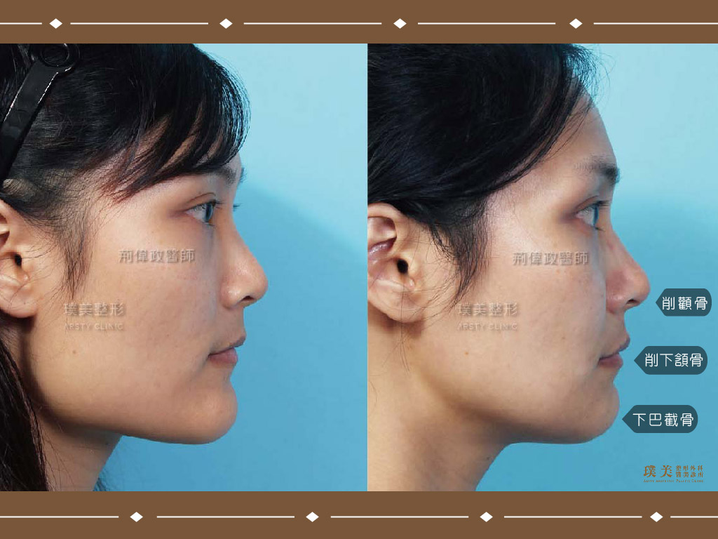 削骨削顴骨削下頷骨截下巴骨,術前術後對比ab案例圖