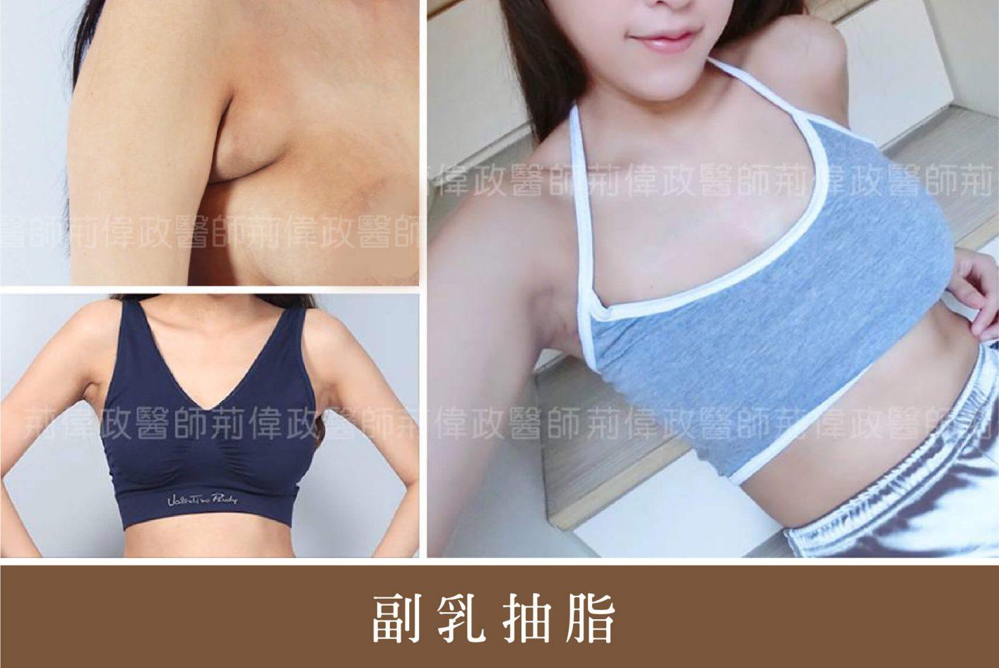 抽脂手術|副乳抽脂|消除副乳