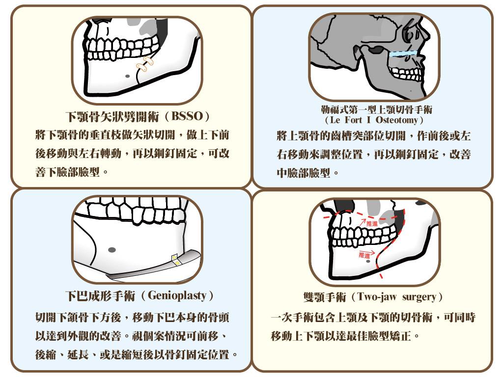 正顎手術種類說明文字圖示插圖