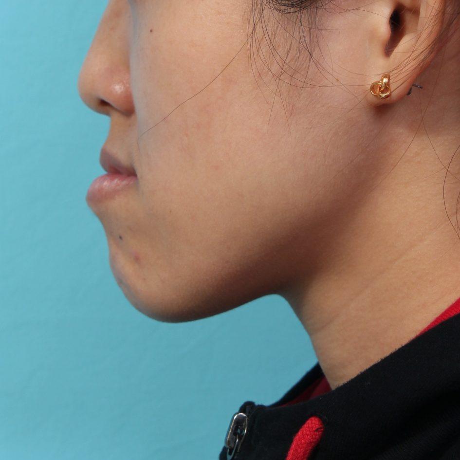 正顎手術矯正下巴外凸凸出案例也是俗稱的香蕉臉月亮臉