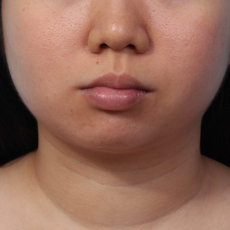 正顎手術矯正臉骨臉部歪斜不對稱手術