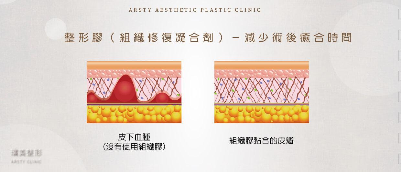 拉皮使用整形膠(組織膠)可減少癒合時間