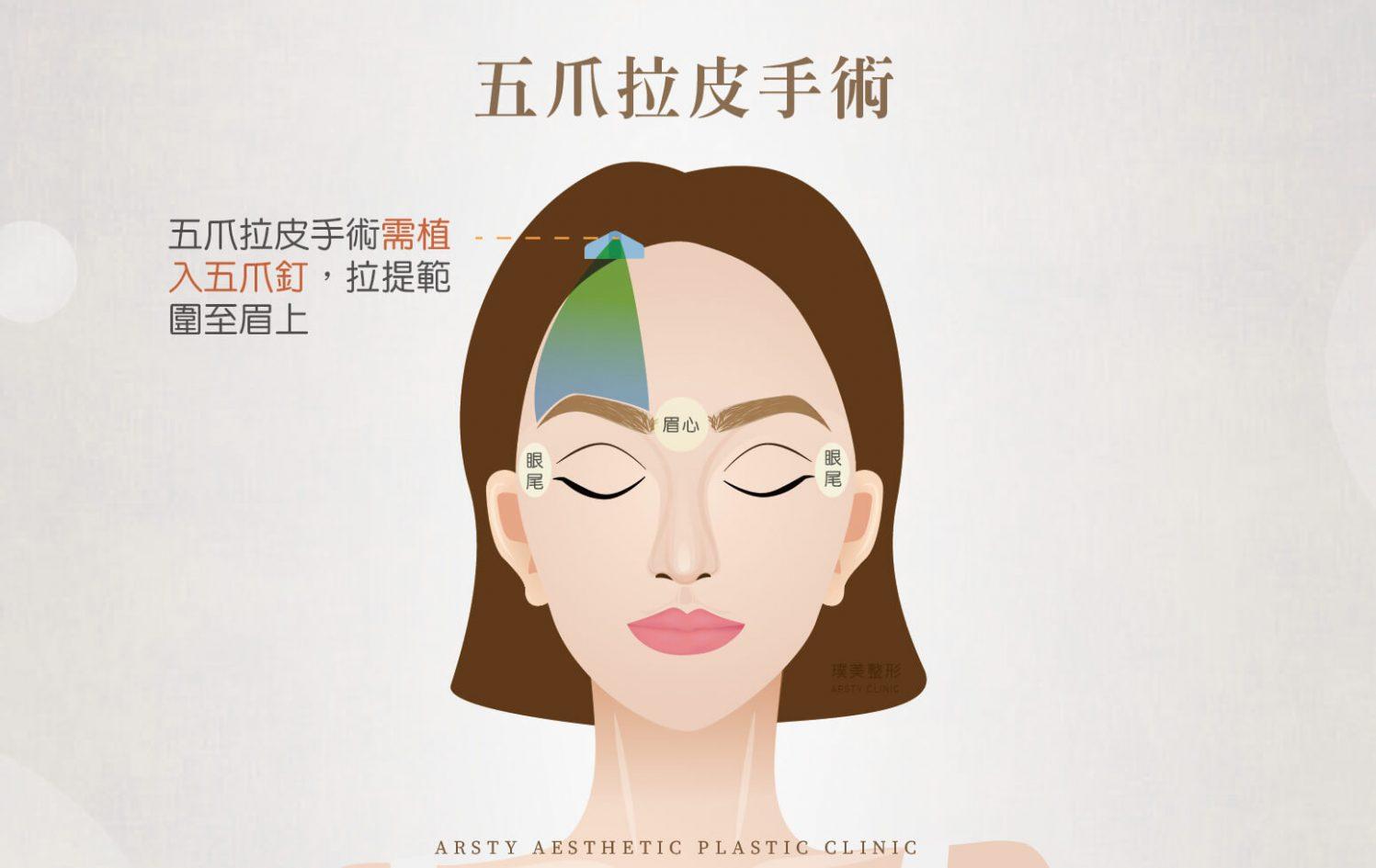 傳統拉皮手術 內視鏡提眉 效果比較 五爪拉皮手術