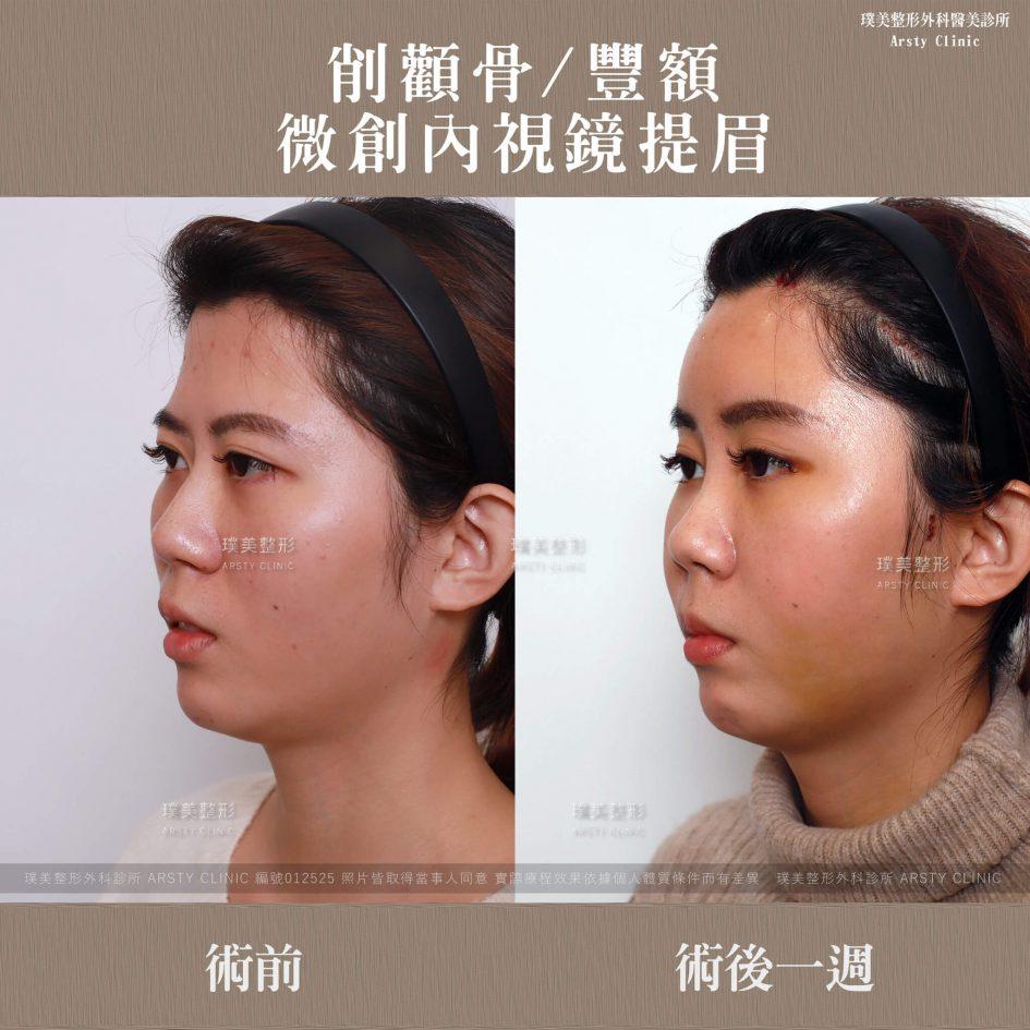 012525內視鏡提眉-削骨-豐額