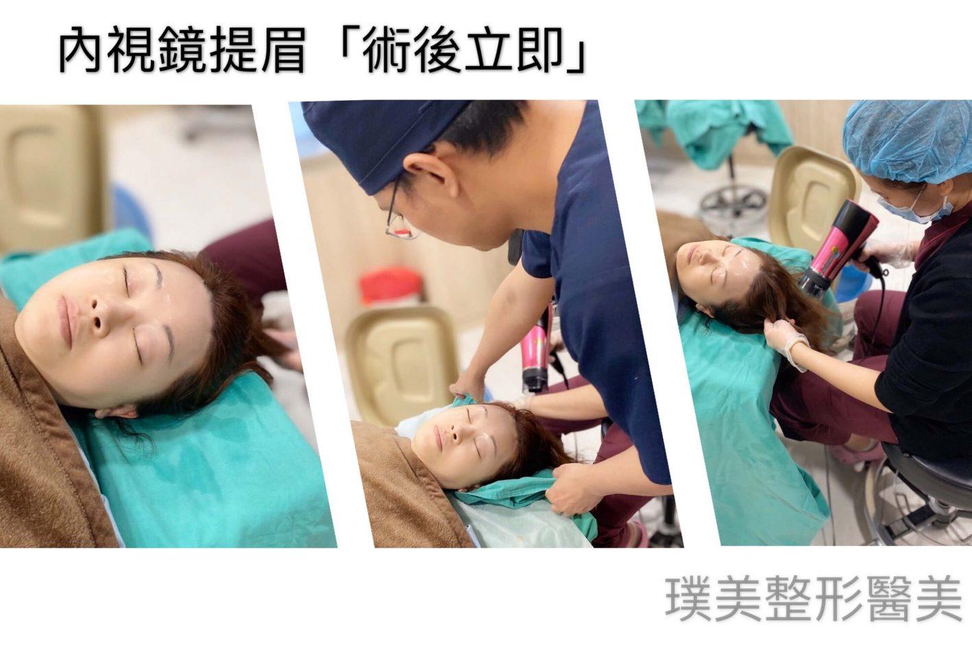 內視鏡提眉 洗頭 1