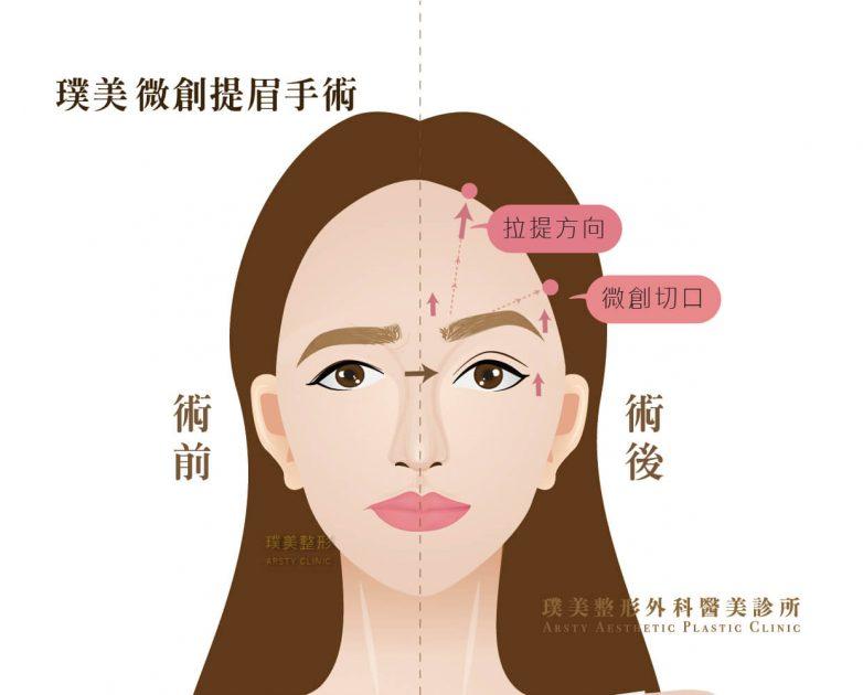 微創內視鏡提眉手術可幫助眼周拉提創造雙眼皮