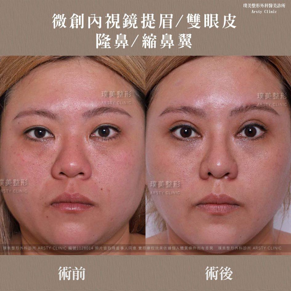 內視鏡提眉上半臉拉皮+縫雙眼皮手術+隆鼻手術