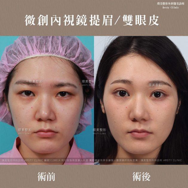 內視鏡提眉+縫雙眼皮案例ab圖