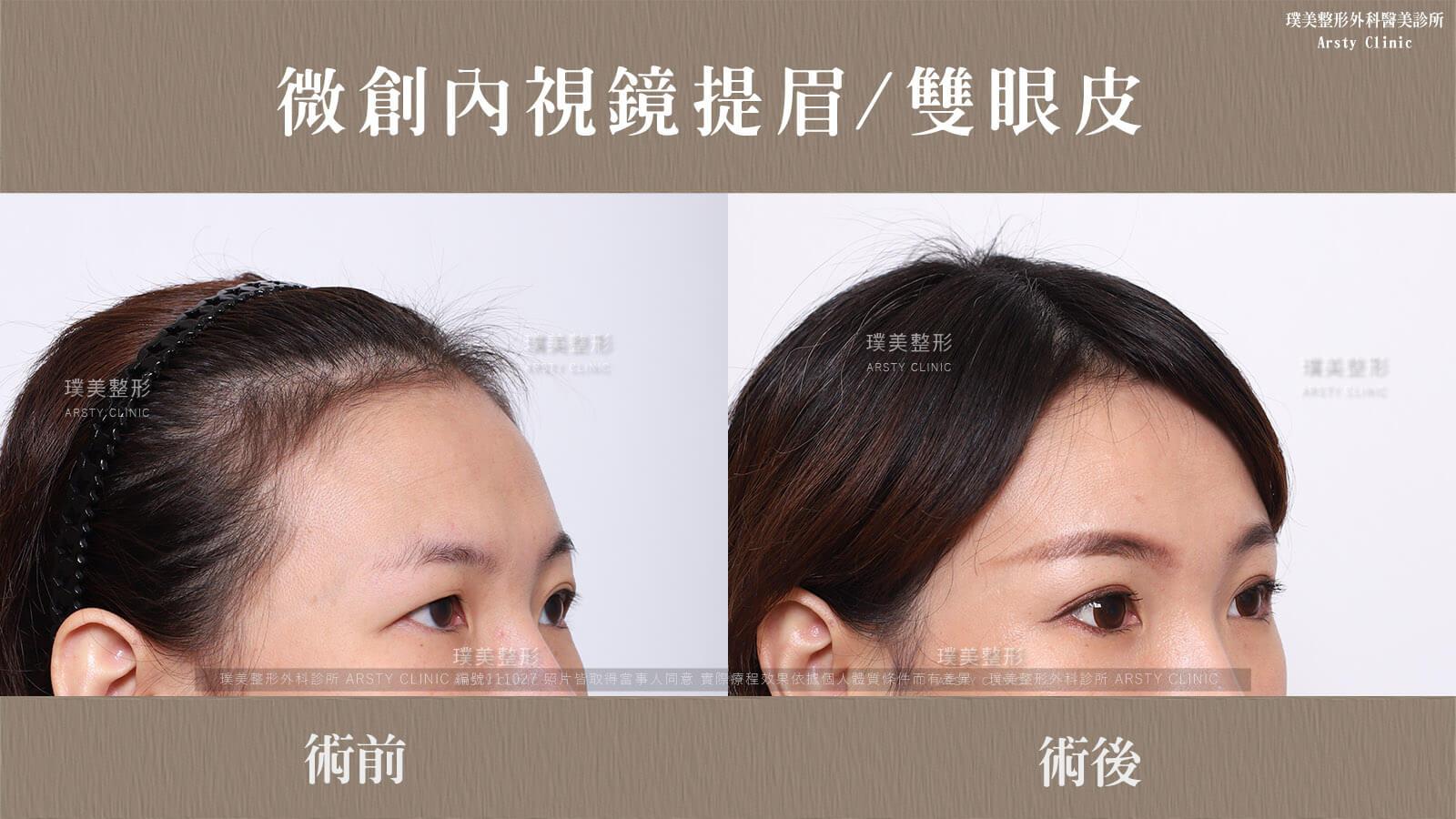 內視鏡提眉上半臉拉皮+縫雙眼皮手術