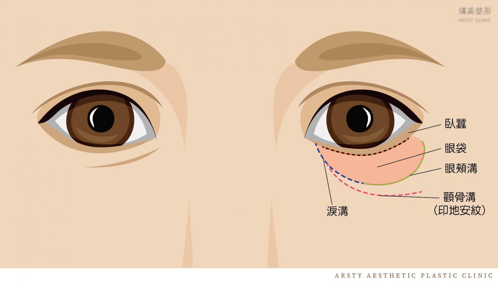 眼袋手術部位示意圖