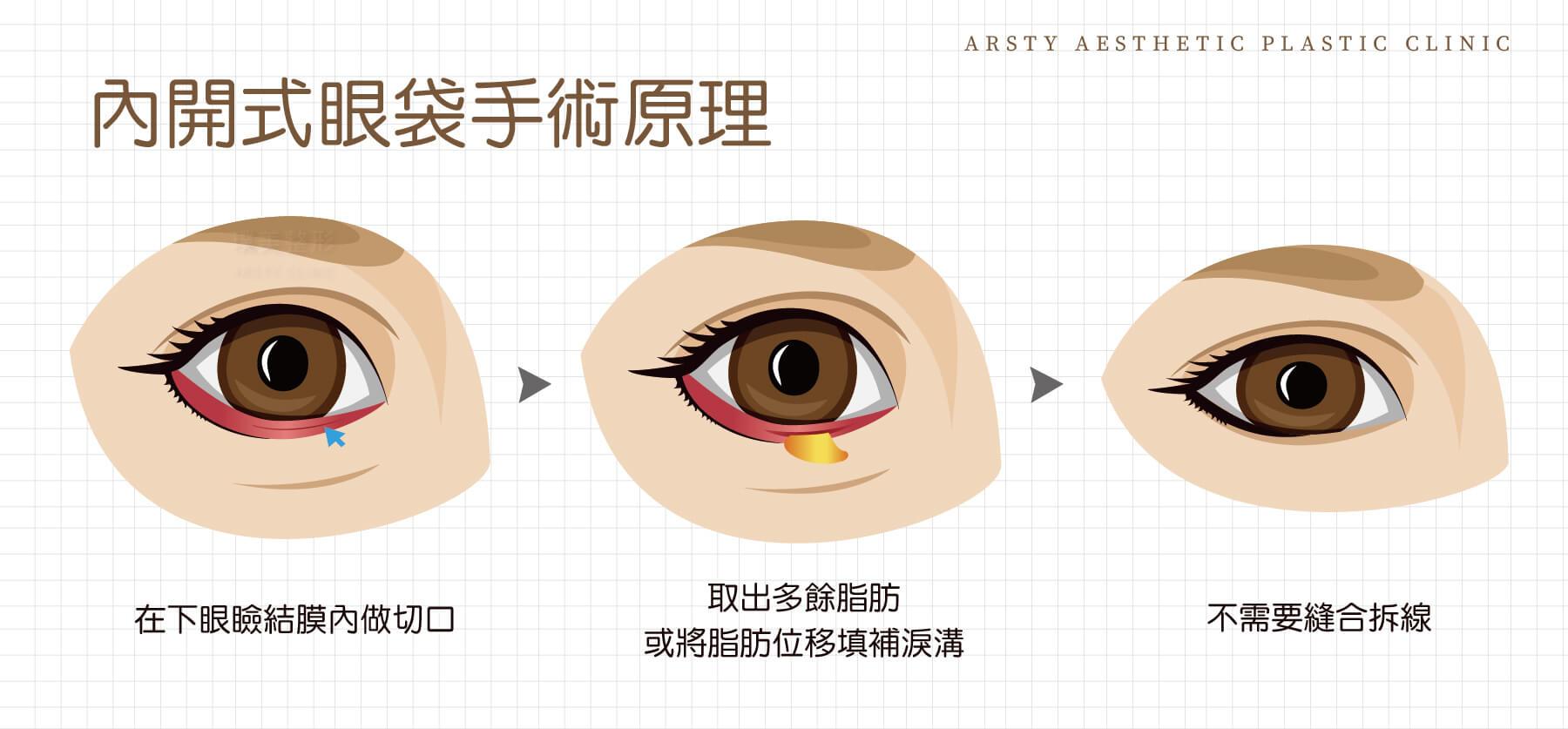 內開式眼袋手術原理示意圖