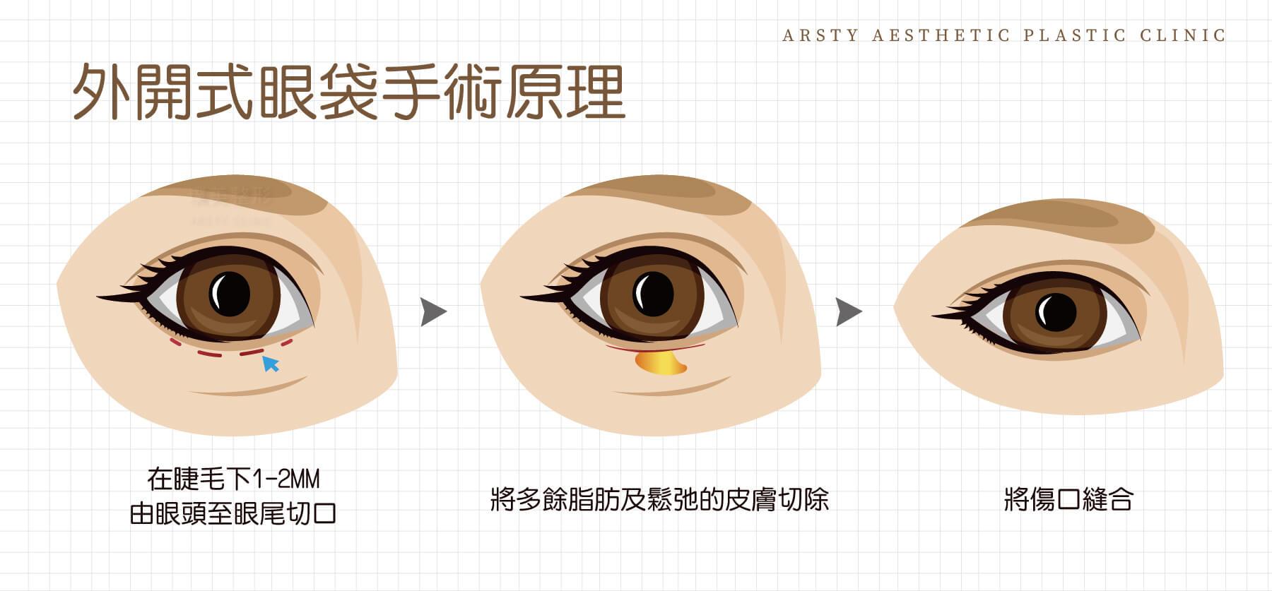 外開式眼袋示意圖