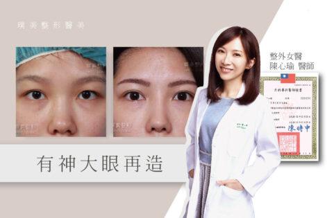 陳心瑜醫師醫師觀點-雙眼皮