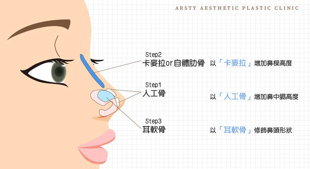 三段式結構式隆鼻