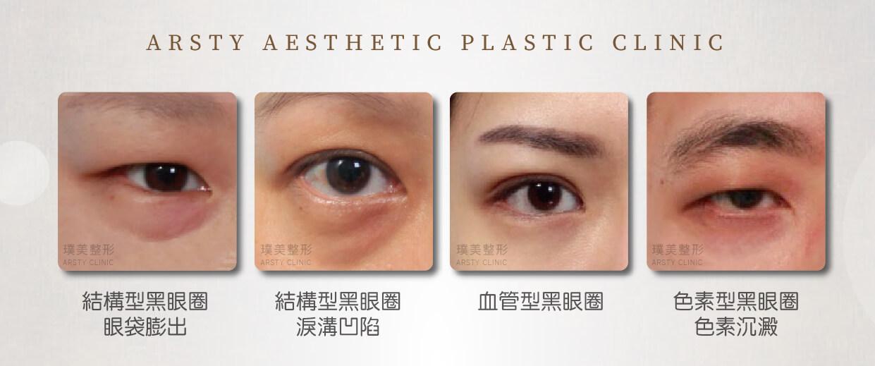 結構型黑眼圈及色素型黑眼圈和血管型黑眼圈