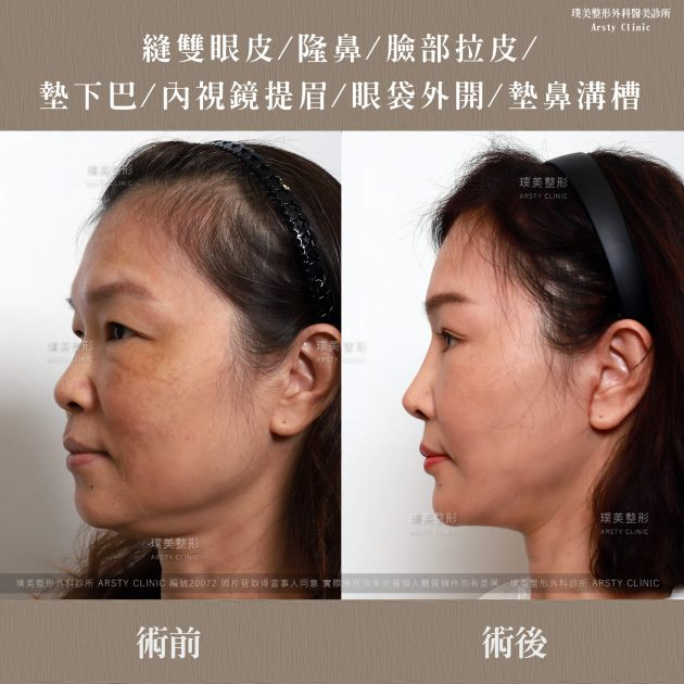 102524內視鏡提眉以及全臉拉皮+墊下巴手術+中下臉拉皮