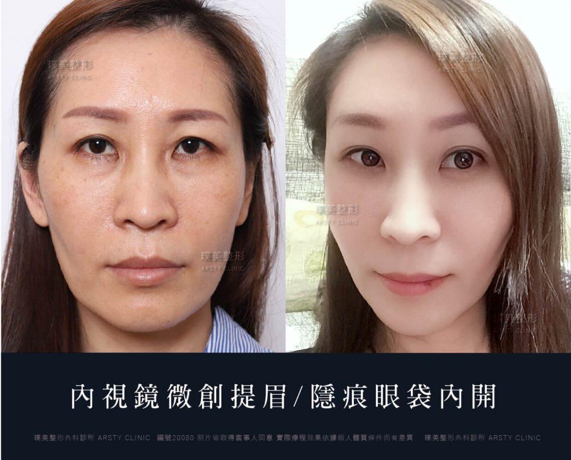 內視鏡提眉+縫雙眼皮+隱痕眼袋內開案例ab圖