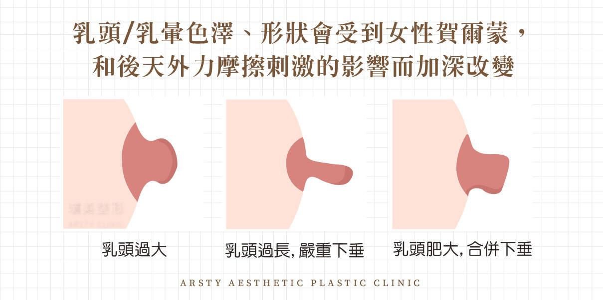 乳頭手術-乳頭過長、乳頭過大,乳頭形狀