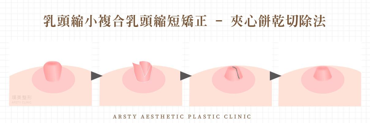 乳頭手術小複合乳頭縮短矯正-夾心餅乾切除法