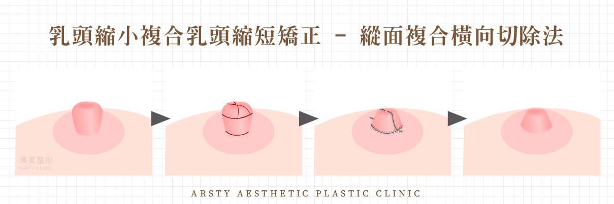 乳頭手術縮短-複合乳頭縮短矯正-縱面複合橫向切除法