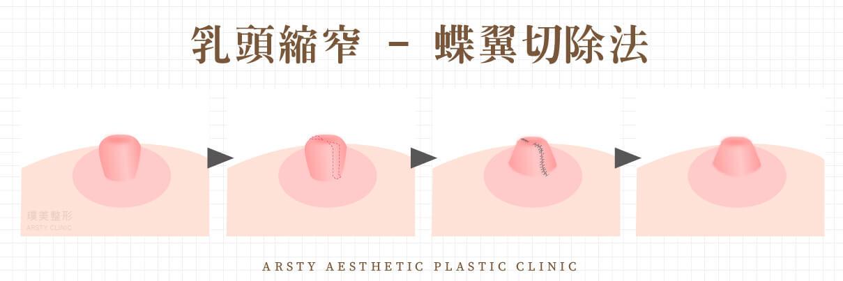 乳頭手術縮窄-蝶翼切除法