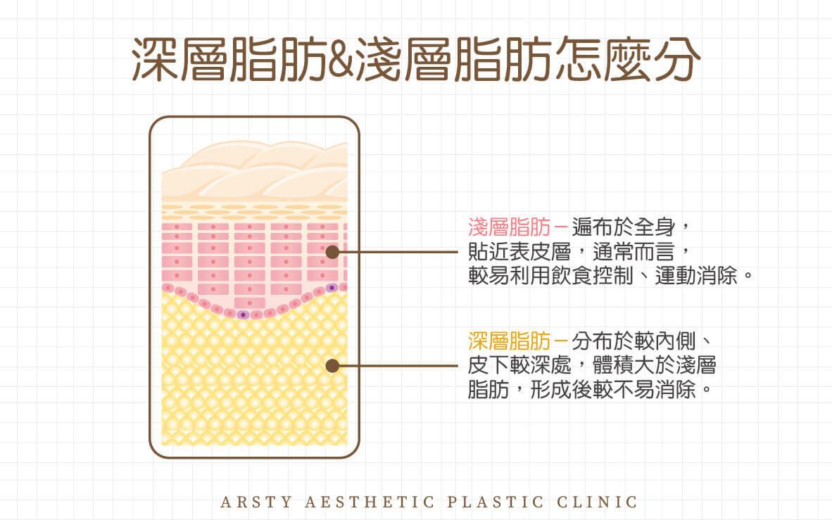 抽脂不等於減肥 淺層脂肪深層脂肪區別