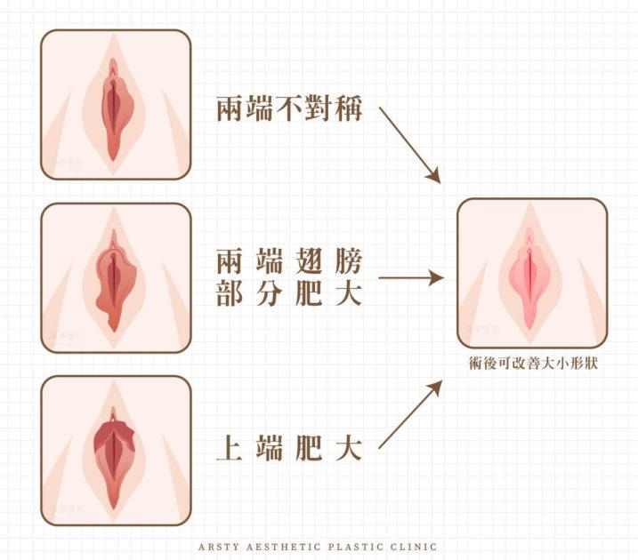私密處手術BA 1