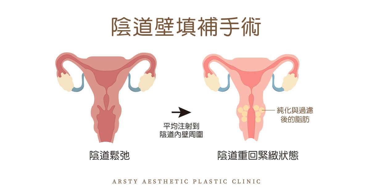 私密處 陰道壁填補手術 1