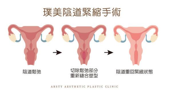 私密處 陰道緊縮手術 1