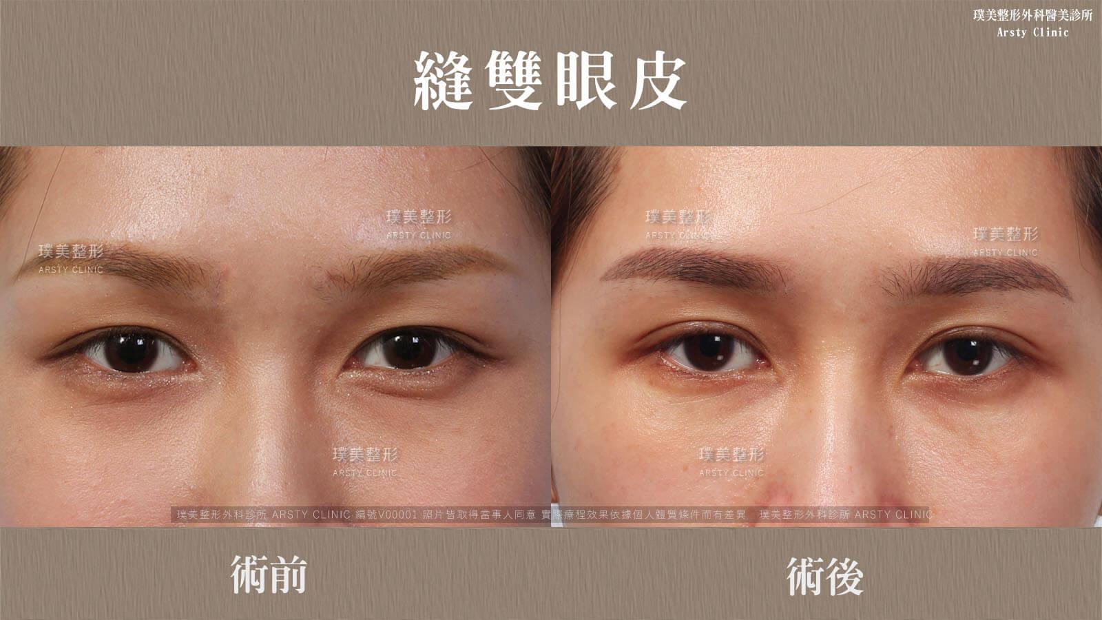 縫雙眼皮VV2