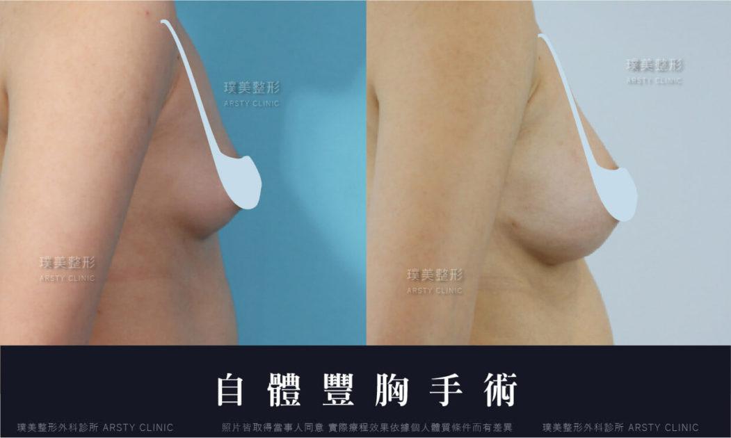 自體脂肪豐胸隆乳手術